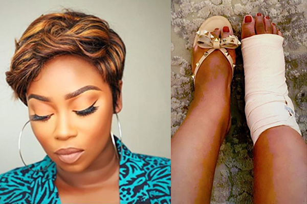 Peace Hyde Involved In An Accident; Suffers A Grade 3 Ligament Tear- Calls For Prayers